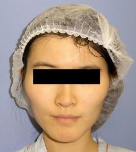 頬骨症例写真・Before・正面