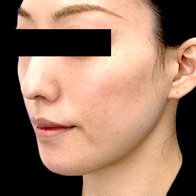 Vライン形成症例写真 - After斜め