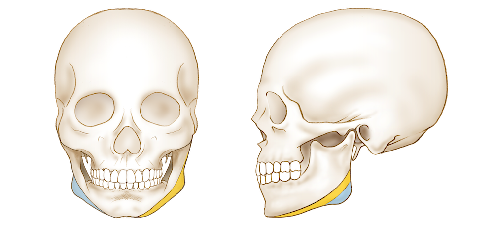 広範囲下顎角形成
