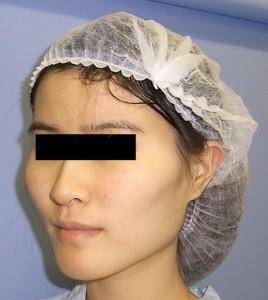 頬骨症例写真・Before・斜め