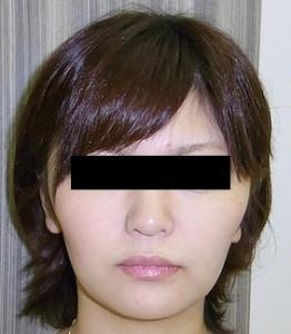 バッカルファットの症例写真3(After)