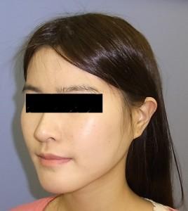頬骨症例写真・After・斜め