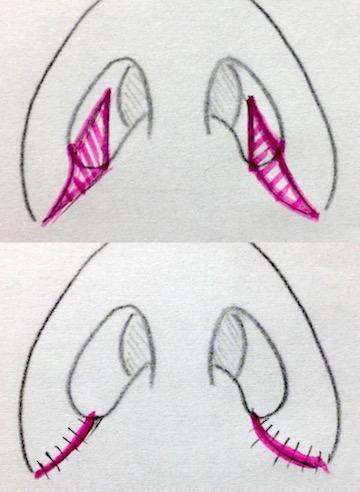 鼻翼縮小のシェーマ
