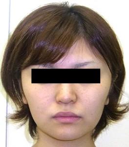 バッカルファットの症例写真3(Before)