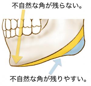 広範囲下顎角形成.001