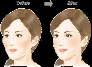 斜頬骨B-A のコピー