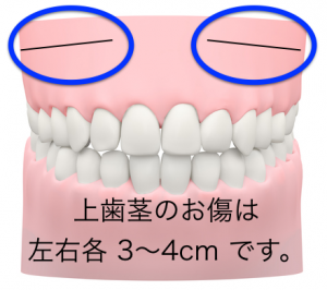 頬骨削り・傷の位置.002