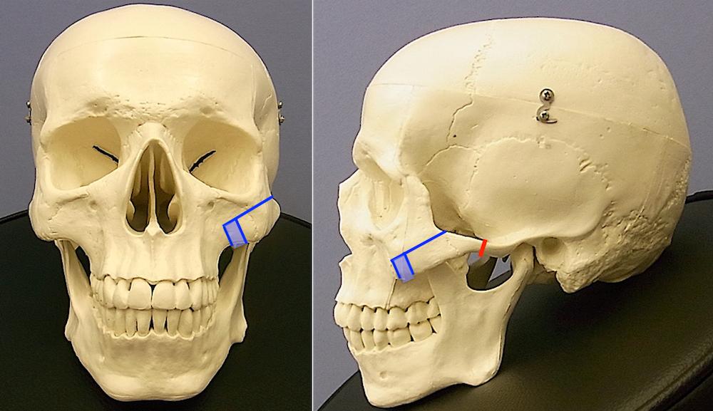 頬骨術式説明.001