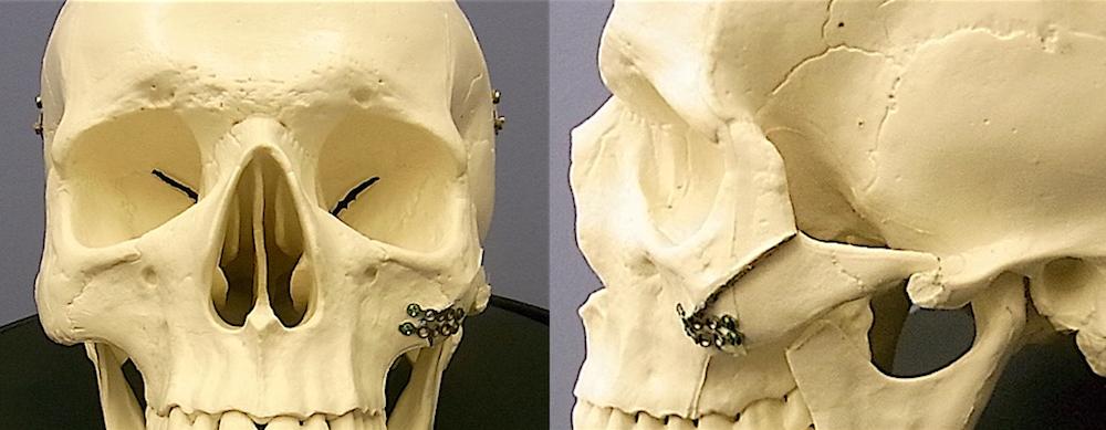 頬骨術式説明.002