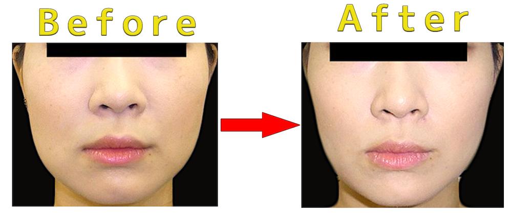バッカルファット除去手術の症例写真(Before → After)