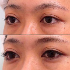 涙袋形成ヒアルロン酸の症例写真-5-2