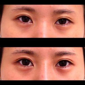 涙袋形成ヒアルロン酸の症例写真-6