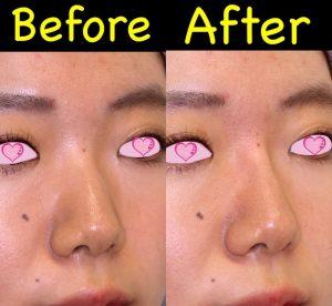 鼻ヒアル症例写真3-斜め