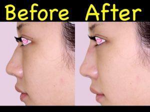 鼻ヒアル症例写真2-側面