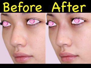 鼻ヒアル症例写真2-斜め