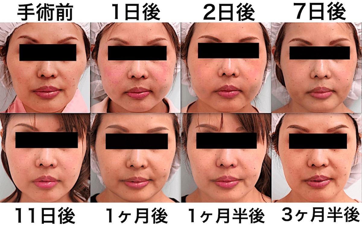 頬骨削り|腫れの経過(術後3ヶ月間)