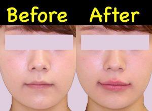 唇ヒアルロン酸の症例写真(ビフォーアフター)