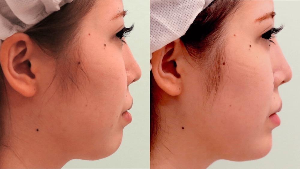 顎ヒアルロン酸の症例写真(側面)