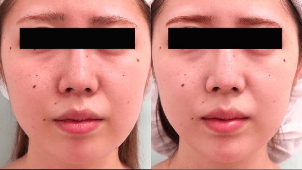 顎ヒアルロン酸の症例写真(正面)