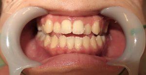 下顎セットバック+オトガイ削り|症例写真|口の中(術前)