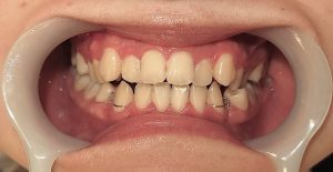 下顎セットバック+オトガイ削り|症例写真|側面(術後)