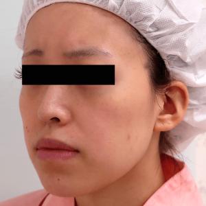 下顎セットバック+オトガイ削り|症例写真|斜め(術前)