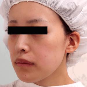 下顎セットバック+オトガイ削り|症例写真|斜め(術後)