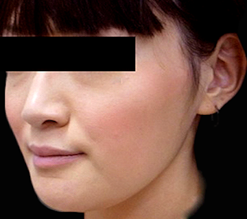 Vライン形成(エラ削り+顎削り)の症例写真(術後)