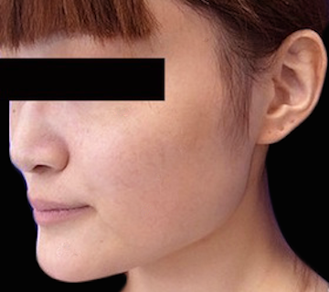 Vライン形成(エラ削り+顎削り)の症例写真(術前)