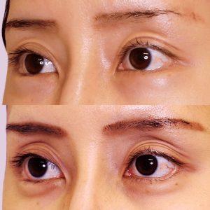 涙袋形成ヒアルロン酸の症例写真-8
