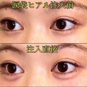 涙袋ヒアルロン酸|注入直後の写真