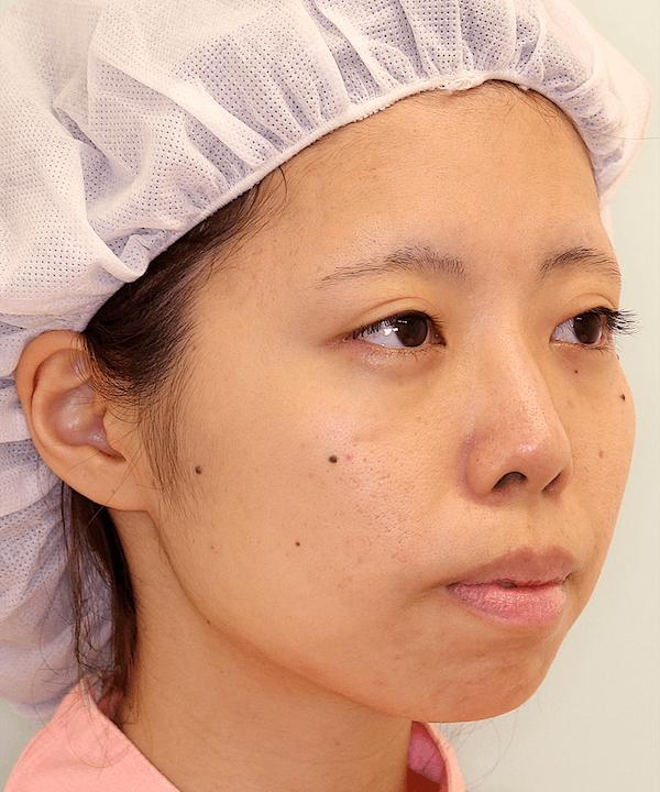 上下顎セットバック症例写真|右斜め|術前