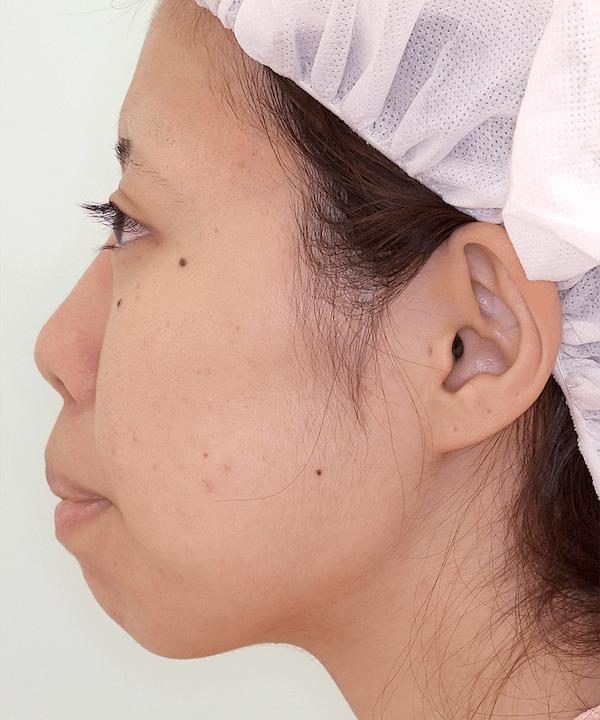 上下顎セットバック症例写真|左側面|術前