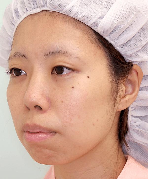 上下顎セットバック症例写真|左斜め|術前