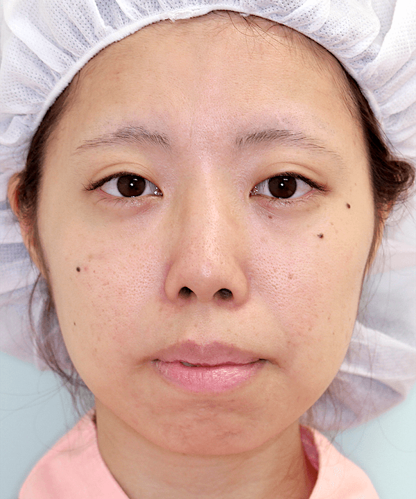 上下顎セットバック症例写真|正面|術前
