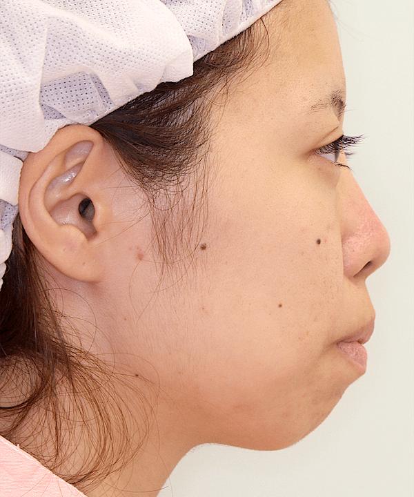 上下顎セットバック症例写真|右側面|術前