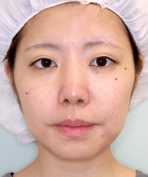 上下顎セットバック症例写真|正面|2ヶ月後