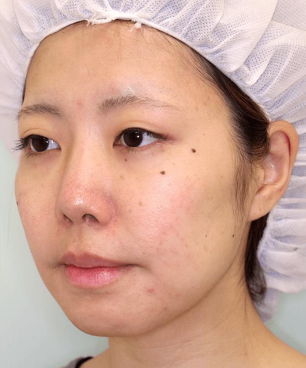 上下顎セットバック症例写真|左斜め|2ヶ月後