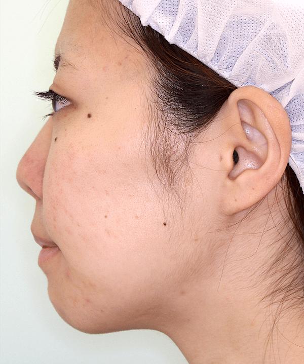 上下顎セットバック症例写真|左側面|2ヶ月後