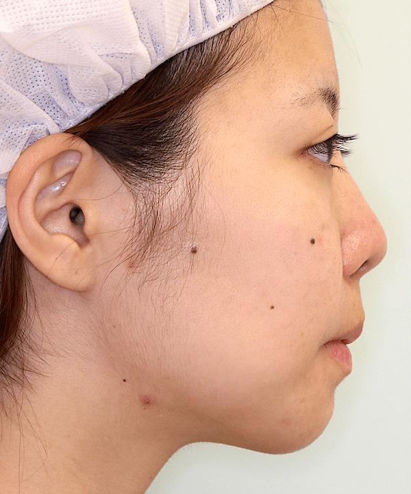 上下顎セットバック症例写真|右側面|2ヶ月後