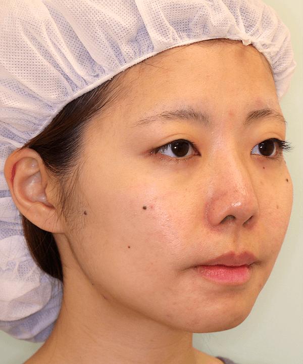 上下顎セットバック症例写真|右斜め|2ヶ月後