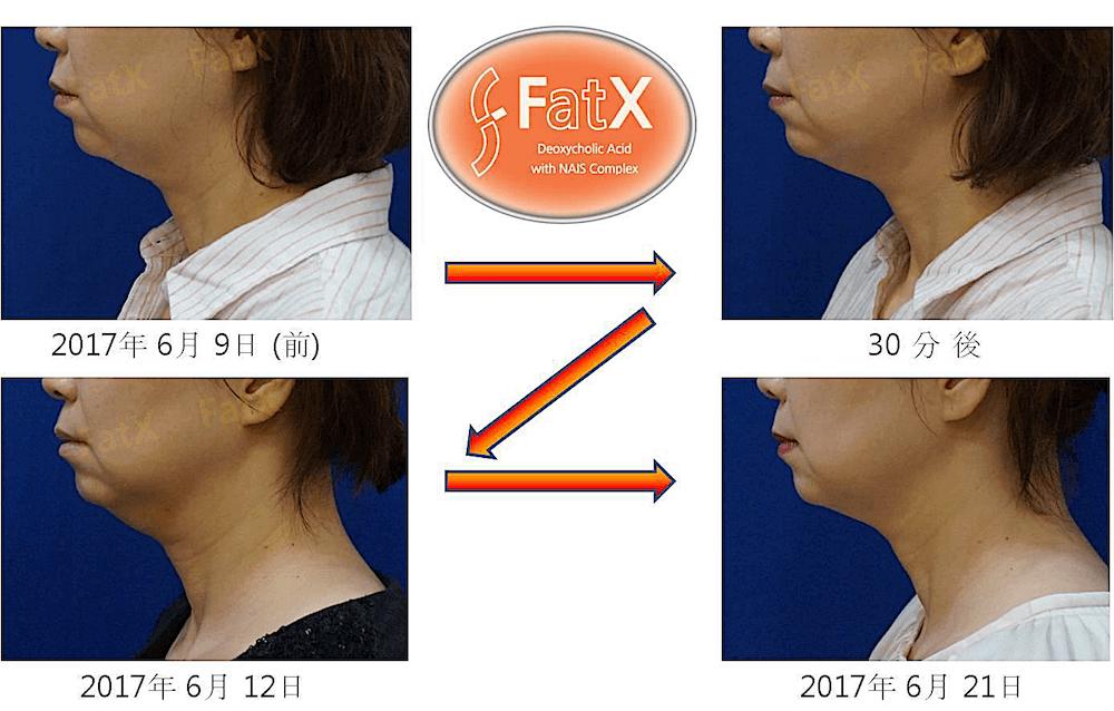 FatX-case1