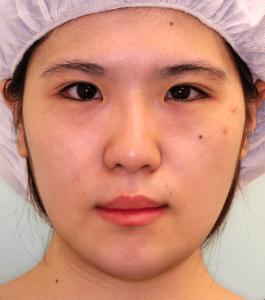 下顎セットバック+オトガイ短縮の症例写真(1ヶ月目・正面)