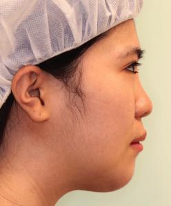 下顎セットバック+オトガイ短縮の症例写真(1ヶ月目・側面)