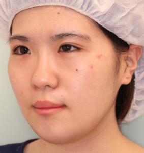 下顎セットバック+オトガイ短縮の症例写真(1ヶ月目・斜め)