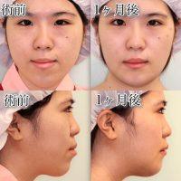 下顎セットバック+オトガイ短縮の症例写真(まとめ)