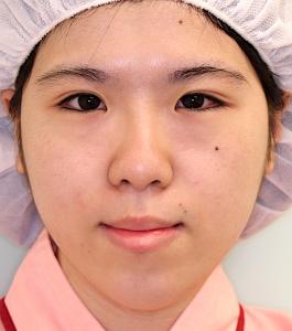 下顎セットバック+オトガイ短縮の症例写真(術前・正面)