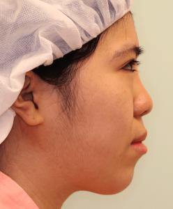 下顎セットバック+オトガイ短縮の症例写真(術前・側面)