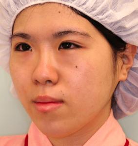 下顎セットバック+オトガイ短縮の症例写真(術前・斜め)