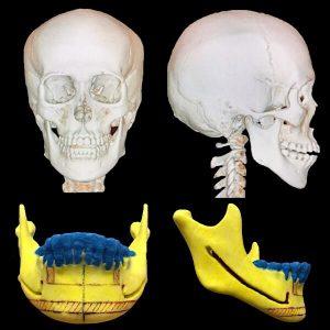 骨削り手術の術前検査|CT・3D骨格模型